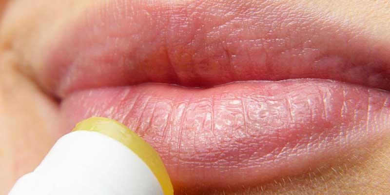 Tratamiento del herpes labial