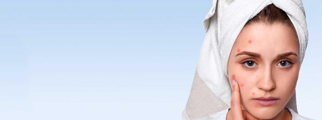 Acné: Causas, Prevención Y Tratamiento